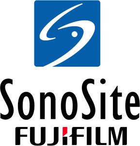 SonoSite