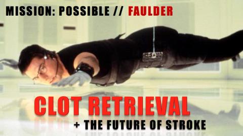 KEN FAULDER: KEN FAULDER: CLOT RETRIEVAL AND THE FUTURE OF STROKECLOT RETRIEVAL AND THE FUTURE OF STROKE